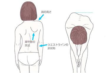 脊椎側彎症syamu1