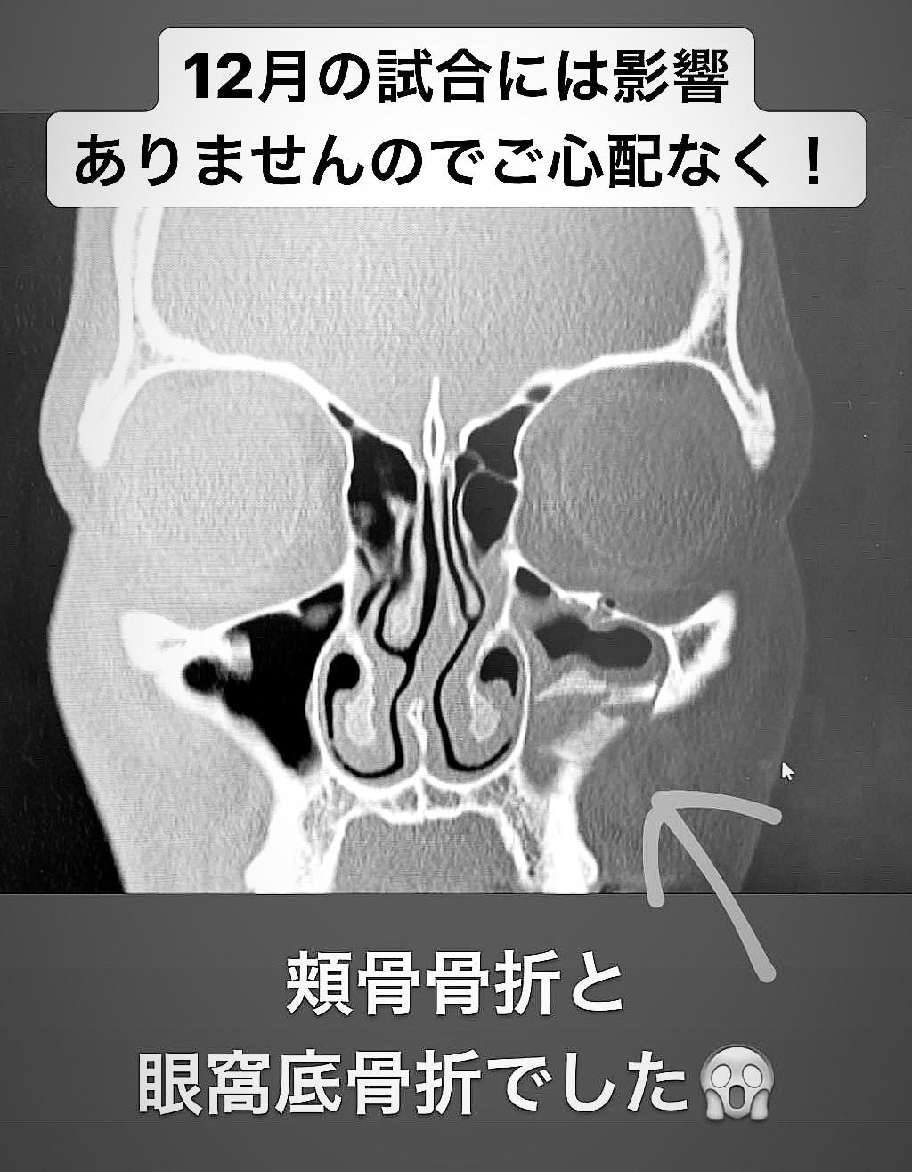 骨折 と は 眼窩 底