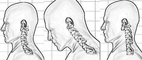 straight_neck