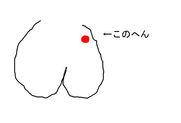 ただおしりのこの辺が痒かったら、うちの科の範疇です。穴から後ろは割れ目ま... 埼玉の大腸肛門科