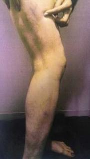 30年前の川崎麻世のDV カイヤの痣画像が流出 川崎はDVを否定