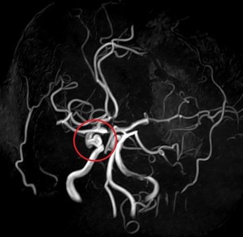 ぼうすい状動脈瘤