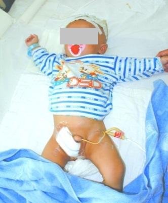 サルに睾丸をとられて手術した中国の赤ちゃん