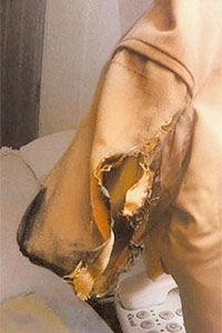 スマホ爆発で焦げ付いたコートのポケット
