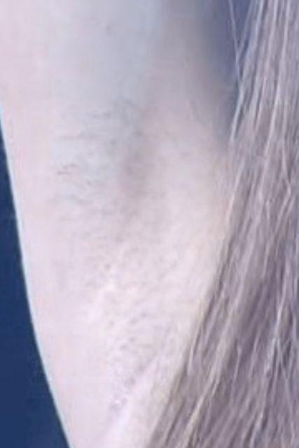 板野友美のワキ毛拡大