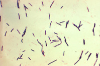 Clostridium_perfringens