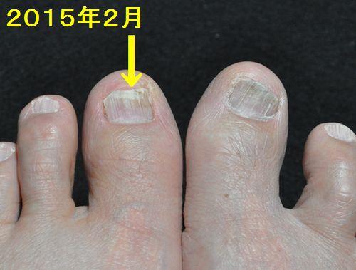 私の左足の爪と指には2015年2月1日 (2)