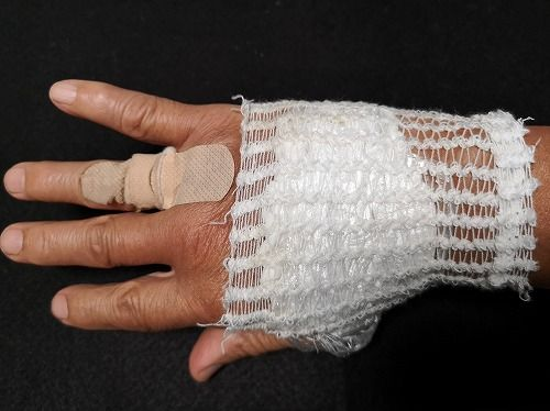 手の甲の方が少しづつ腫れてきたので
