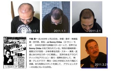 hair-gain-021-640x400