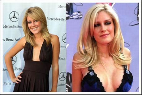 celebrities_before_and_after_boob_jobs_01