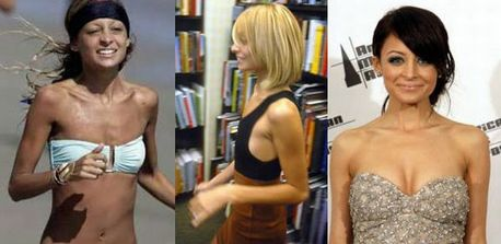 celebrities_before_and_after_boob_jobs_14