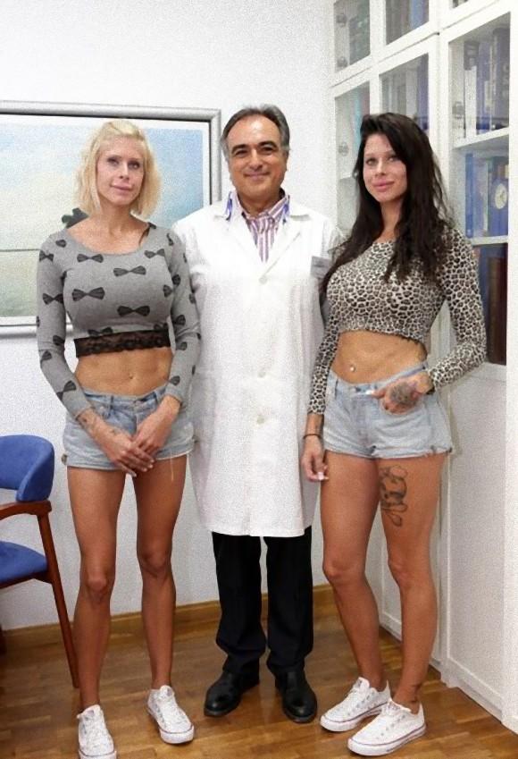 plastic_surgery_22_e