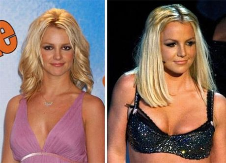 celebrities_before_and_after_boob_jobs_05