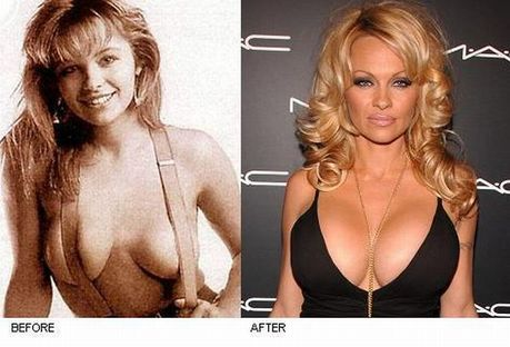 celebrities_before_and_after_boob_jobs_03
