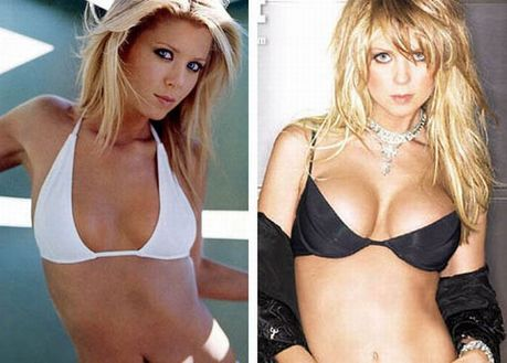 celebrities_before_and_after_boob_jobs_17