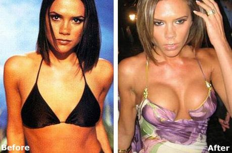 celebrities_before_and_after_boob_jobs_02