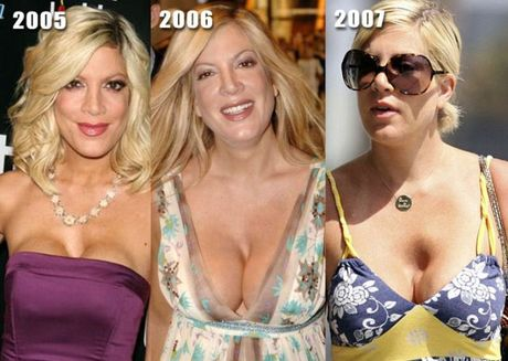 celebrities_before_and_after_boob_jobs_18