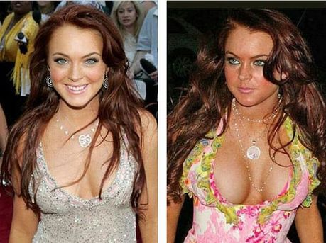 celebrities_before_and_after_boob_jobs_04