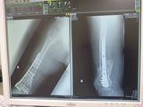 20130612の骨