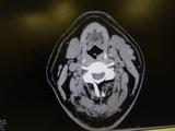 腫瘍らしき物 (2)