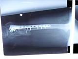 20120125の骨 (1)