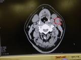 腫瘍らしき物 (3)