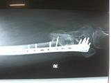 2010年2月の骨