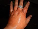 右手の蕁麻疹
