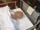鎖骨プレート除去手術 (2)