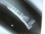 2010年2月の骨 (1)