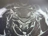 140918首のMRI (3)