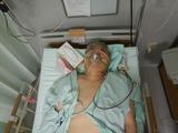 201120腫瘍摘出手術完了直後 (1)