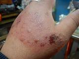 180301右手の腫れ (2)