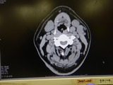 腫瘍らしき物 (1)