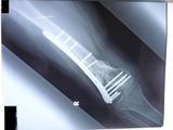 20120125の骨