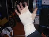 何故か右手負傷