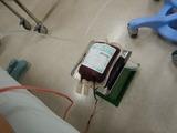 真性多血症告知からの治療 (4)