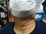 顎の腫瘍201111