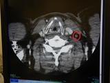 癌サバイバー定期健診210614 (1)