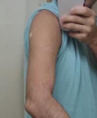 【ワクチン】俺の接種位置おかしくね?【モデルナアーム】