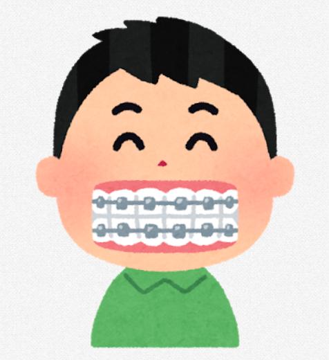 なんJ 歯列矯正するか何年も迷ってる部