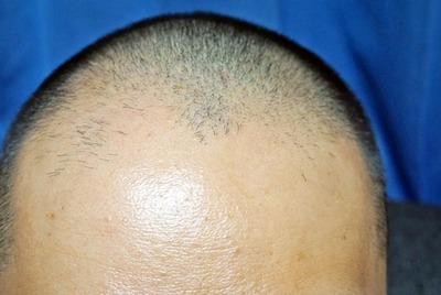 34歳で禿げてきたんだがwwwwww