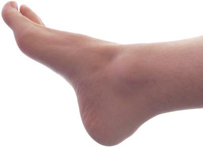 【激痛】足の爪が肉にくい込んでる奴wwww