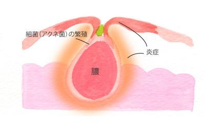nikibi_mechanism_05