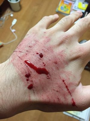 【MHX】全部傷のおかげで隆起してるんやで