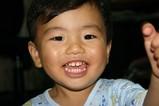 1歳9ヶ月の歯
