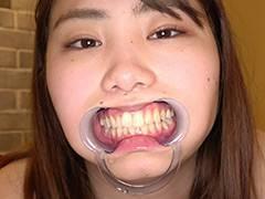 人気女優 篠原りこチャンの歯・口内・舌ベロ・涎・のどちんこ観察!