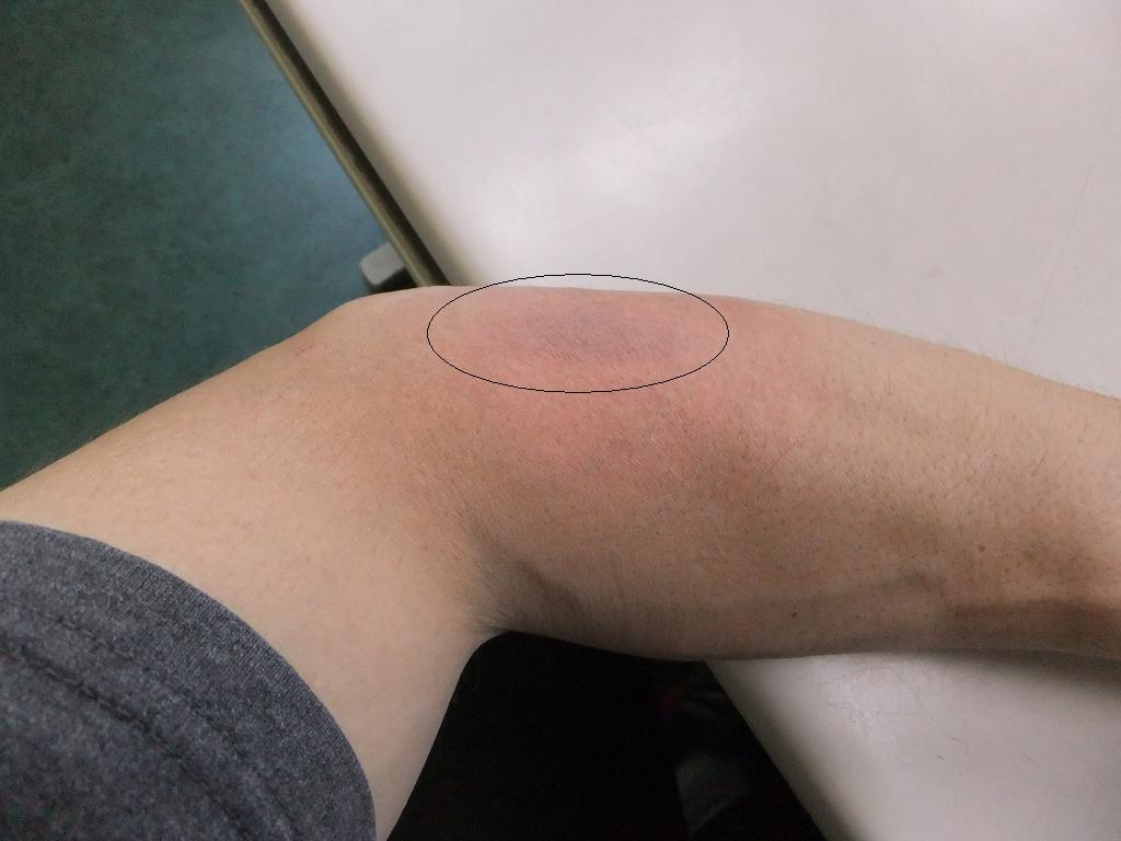 痛い 左腕 が