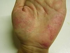 掌蹠膿疱症0819左手
