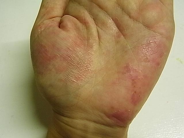 皮膚 ピリピリ 痛い 我慢してはいけない!「神経障害性疼痛」 健康・医療トピックス